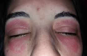 "Do you sometimes get a swollen, itchy, red eyelid for ""no reason""?"